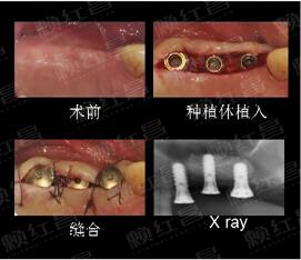双侧上颌后牙区重度骨量不足口腔种植修复病例