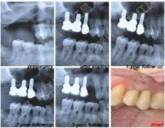 上颌窦内提升不植骨技术的种植修复案例